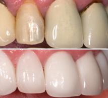 bělící pasta denta seal recenze