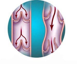 krém na hemeroidy zdorov účinky